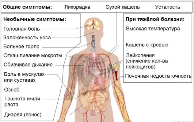 На какой день у человека диарея при COVID-19