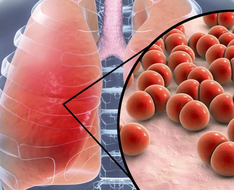 Симптомы пневмонии у взрослого человека без температуры, кашля и насморка