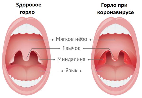 Першение в горле может ли быть признаком коронавируса