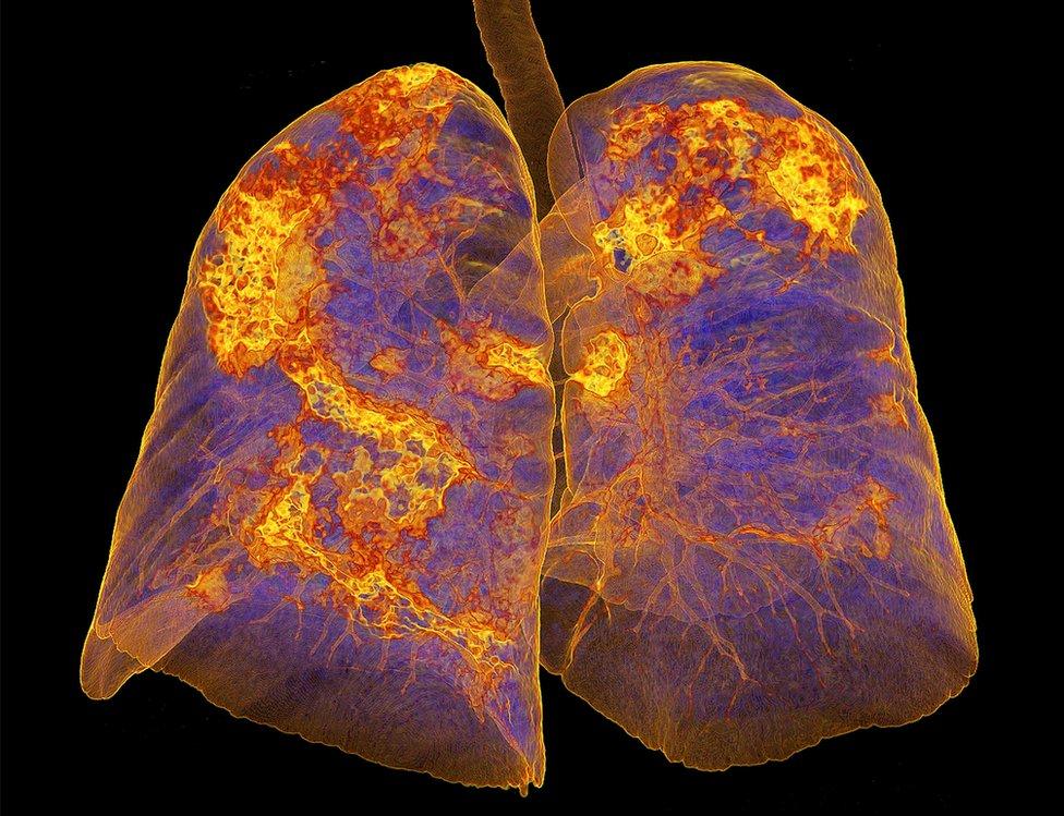 Всегда ли рентген показывает пневмонию при коронавирусе