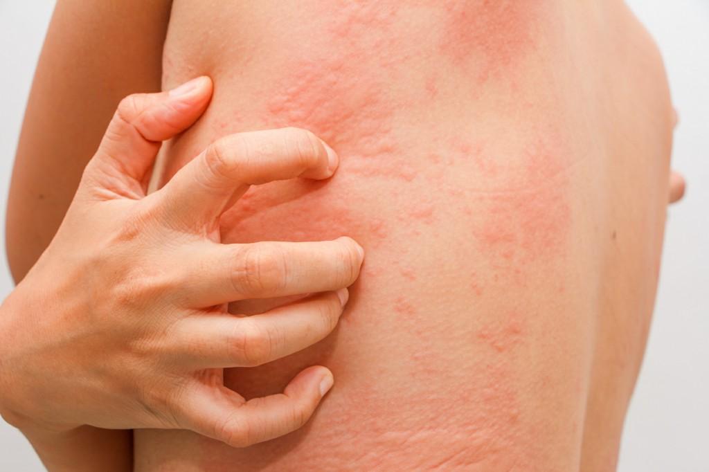 Кому нельзя делать прививки от COVID-19